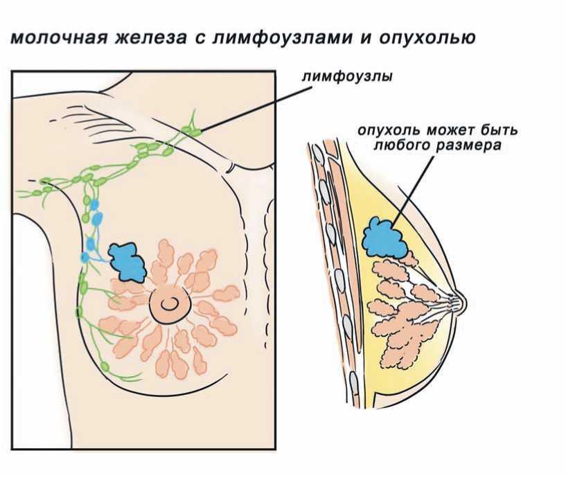 Обзор рака молочной железы в гормонозависимой форме
