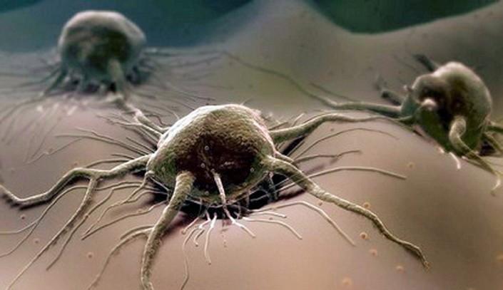 Можно ли полностью вылечить рак: шансы в тяжелой борьбе
