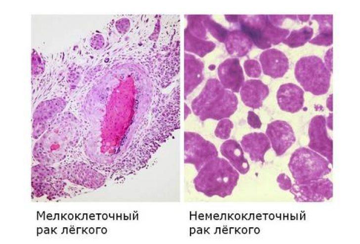Мелкоклеточный и немелкоклеточный