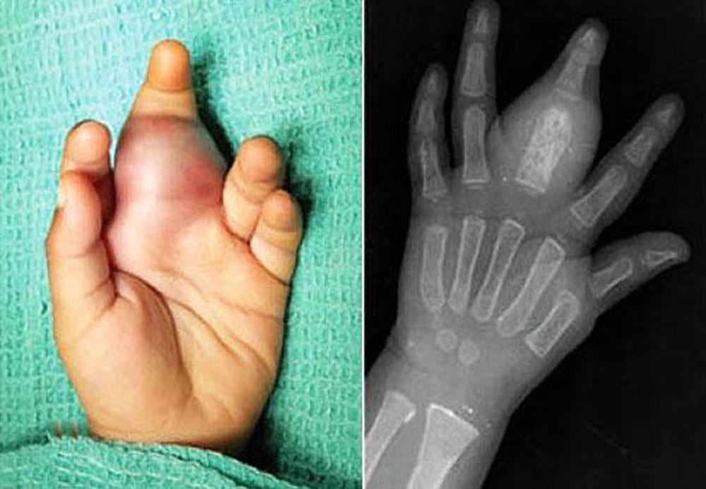 Саркома Юинга: подробный обзор патологии для больных