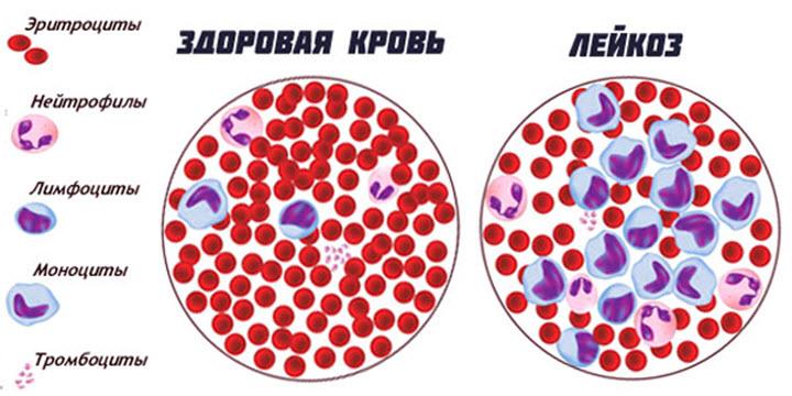 Белокровие: особенности патологии «белой» крови
