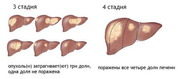 Рак печени 4 степени: проявления и борьба с заболеванием