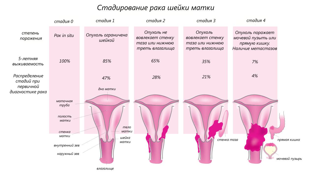 2 стадия онкологии матки и шейки матки: признаки, лечение, профилактика