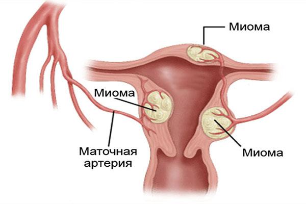Может ли миома матки перерасти в рак: подробный обзор проблемы