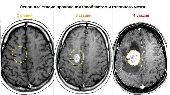 Рак головного мозга на 4 стадии: можно ли жить?