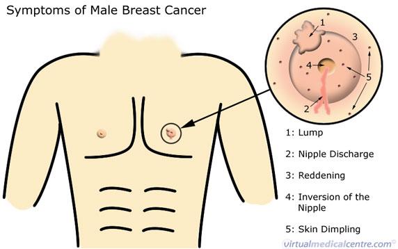 Бывает ли рак груди у мужчин: все про редкое заболевание