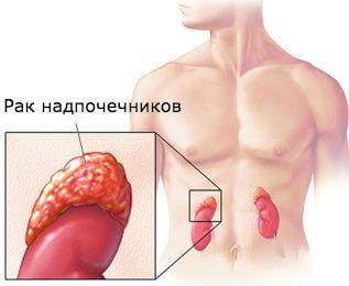 Рак надпочечников: обратите внимание на скрытую болезнь!