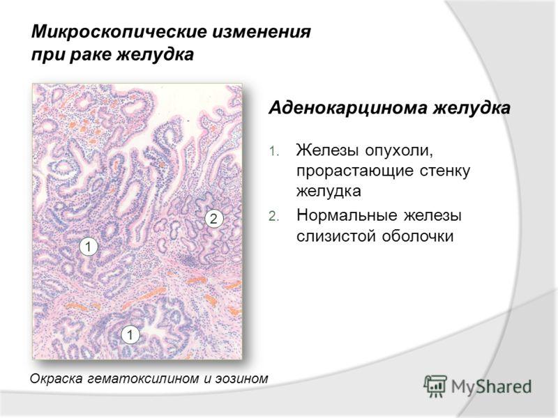 Аденокарцинома желудка – вся информация про эту странную болезнь