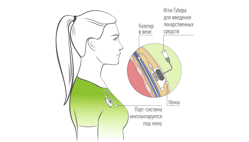 Порт для химиотерапии: современная замена капельнице