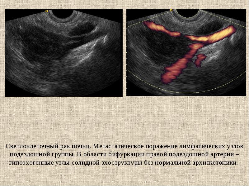 Светлоклеточный рак почки: подробный разбор заболевания