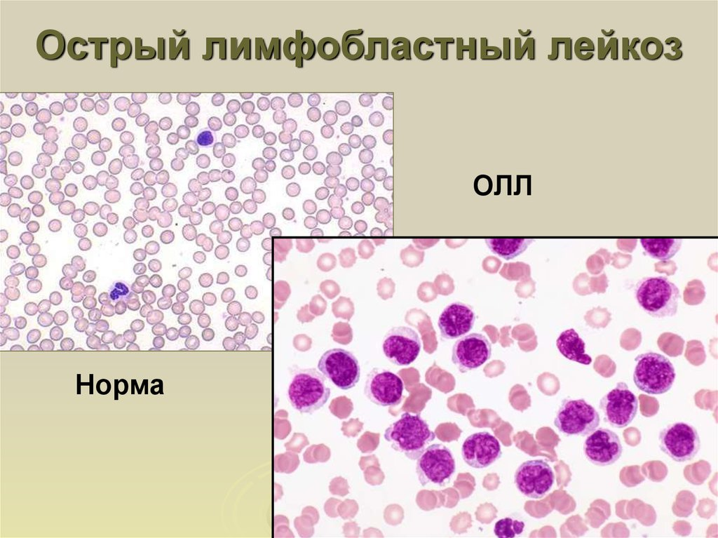 Лимфобластный лейкоз: особенности у детей и взрослых