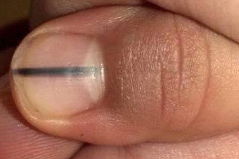 Меланома ногтя: опасные изменения в структуре ногтей