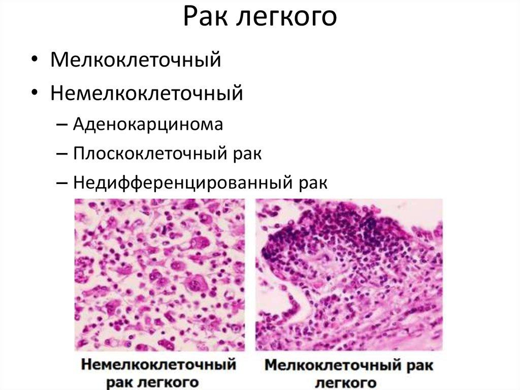 Плоскоклеточный рак легкого: виды и особенности патологии