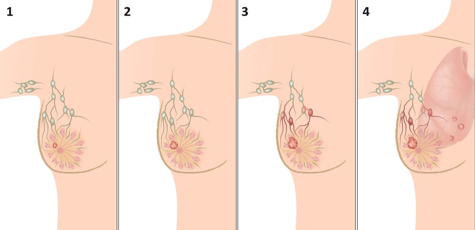 Болит ли грудь при раке молочной железы, или как с этим бороться