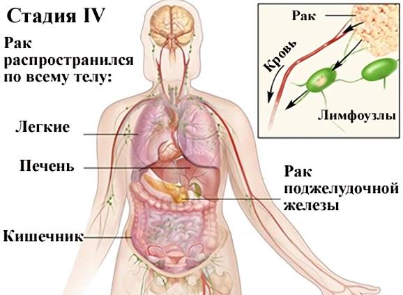 Рак поджелудочной железы 4 стадии: особенности выживания