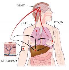 Метастатическая меланома: особенности распространения болезни