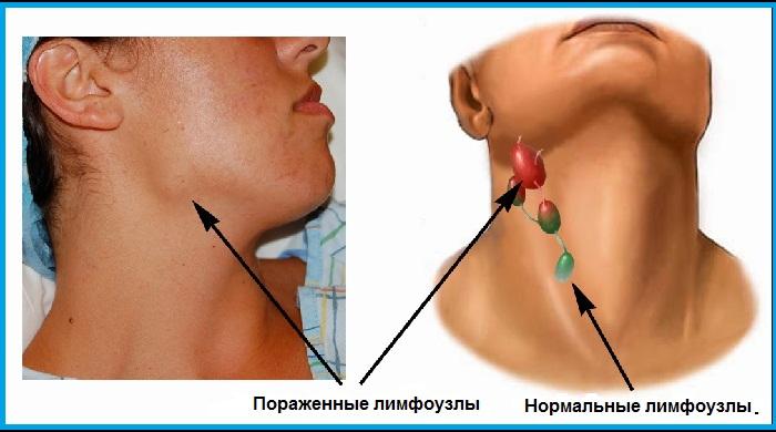 Рак лимфоузлов на шее: причины онкологии и методы борьбы