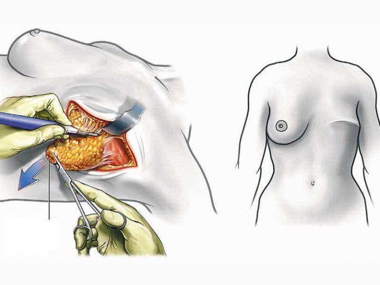 Рак груди на 4 стадии: что делать на последней стадии?