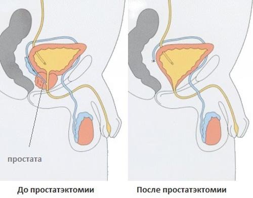 Рак предстательной железы 2 стадии: полный обзор патологии