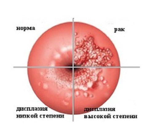 Рак и предрак