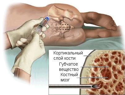 Рак костного мозга со всех сторон: виды, симптомы, лечение