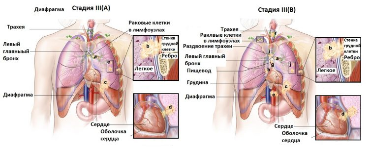 Рак легких 3 стадии: вся информация о патологии