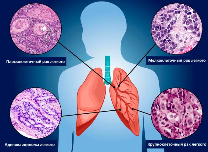 Мелкоклеточный рак легкого: обзор редкого заболевания