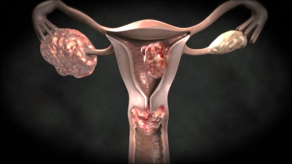 Код рака матки по МКБ 10 – C54 – подгруппы и описание внутри