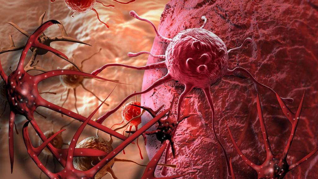 Причины рака: классические и современные теории в обзоре