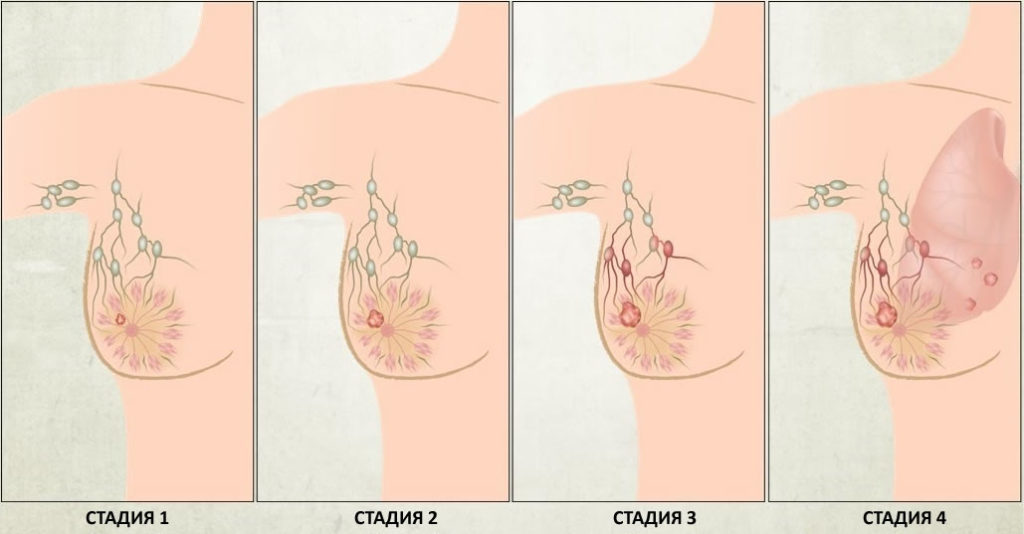 Код рака молочной железы по МКБ 10: C50, подвиды внутри