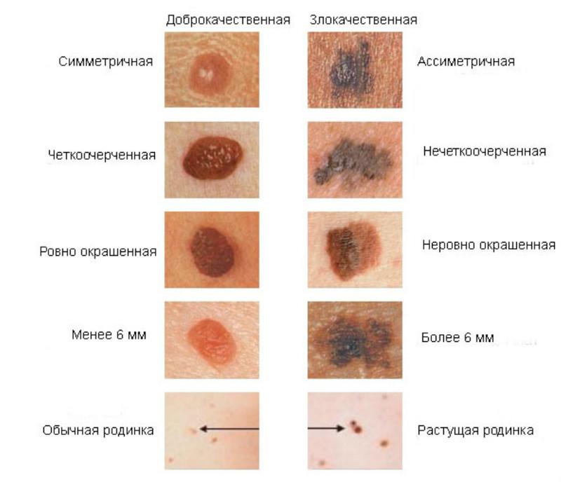 Меланома и код МКБ 10 – C43, все подгруппы внутри статьи