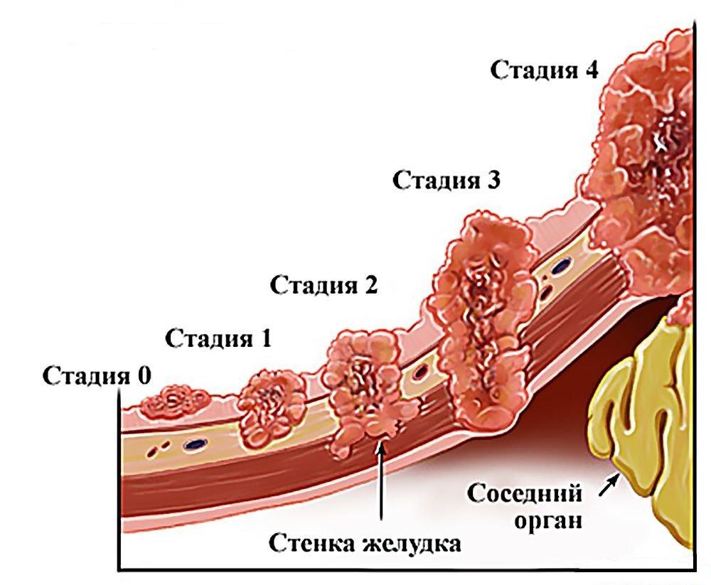 Код рака желудка в МКБ 10 – C16, подгруппы и описание внутри