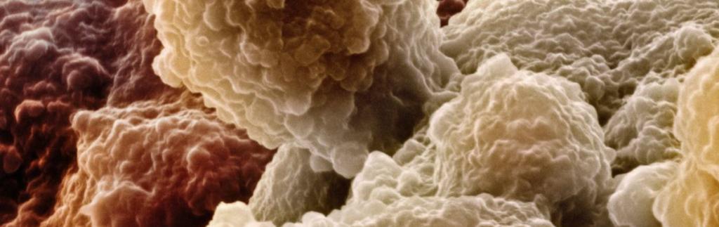 Клинические группы в онкологии: какие бывают и описание