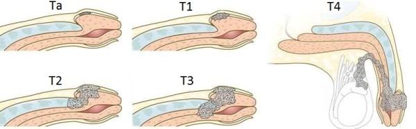 Рак полового члена: причины, симптомы, диагностика и лечение