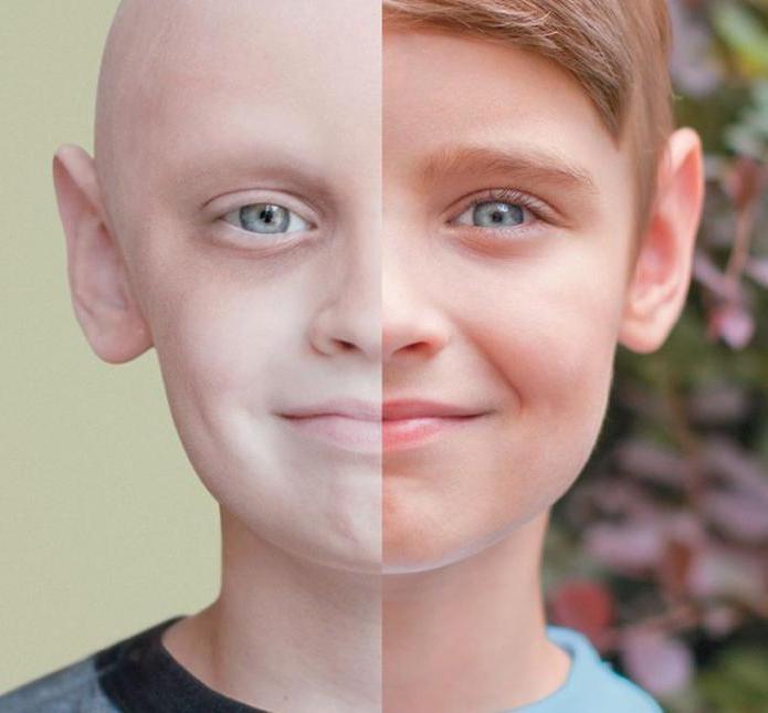 Химиотерапия: последствия лечения и методы улучшения состояния