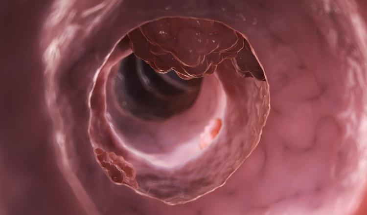 Аденокарцинома кишечника: причины и симптомы, классификация, диагностика и лечение