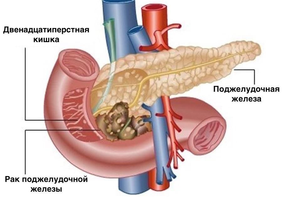 Рак головки поджелудочной железы: симптомы, терапия, прогноз