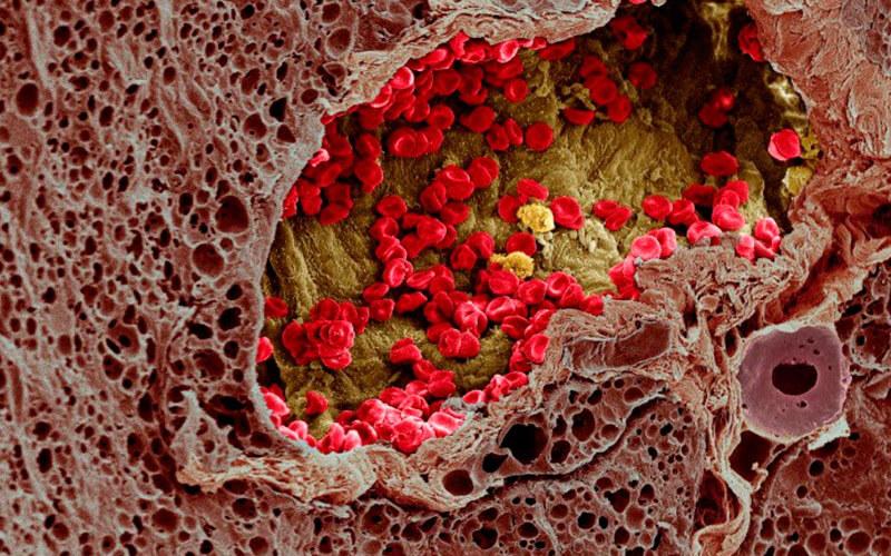 Гистология: что это такое в онкологии и расшифровка для людей
