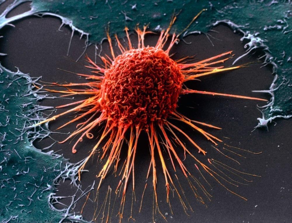 Как уберечься от рака, или вся правда об онкологии