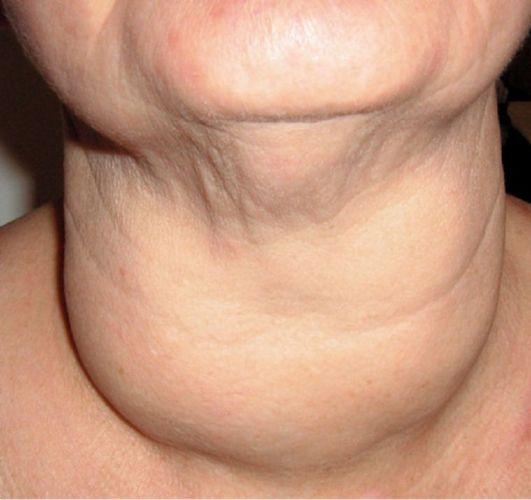 Рак шеи: локализация, симптомы, диагностика, лечение
