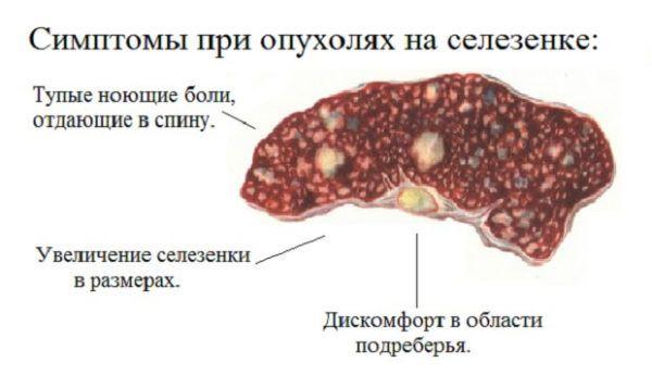 Рак селезенки: причины, симптоматика, диагностика, лечение