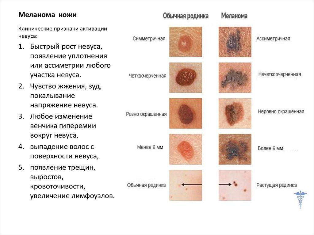 Меланома: продолжительность жизни на 4 стадии болезни