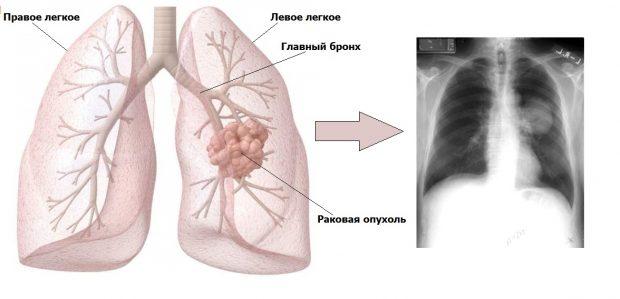 Центральный рак на рентгене