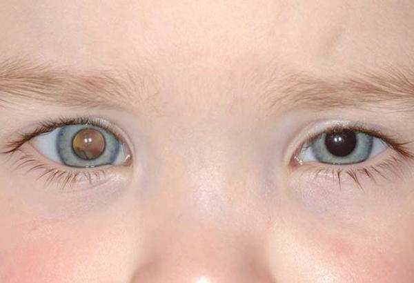 Рак глаза у детей и взрослых: ранние симптомы, методы лечения