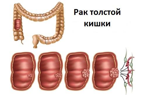 Аденокарцинома толстой кишки: прогноз выживаемости, лечение, симптомы