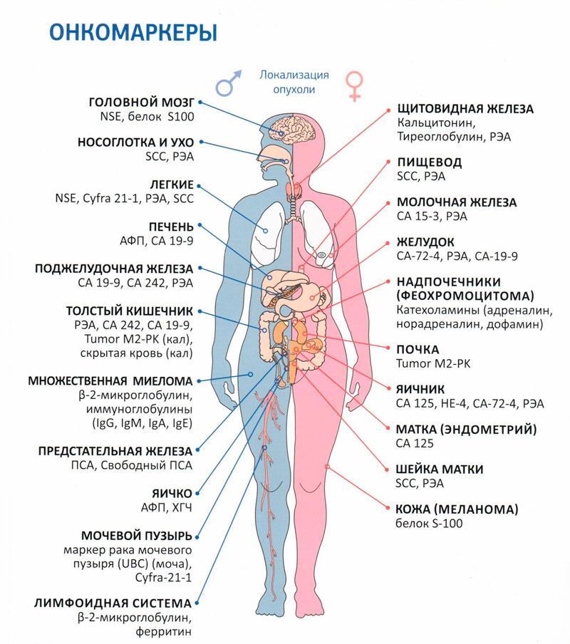 Первично-множественный рак: синхронный и метахронный