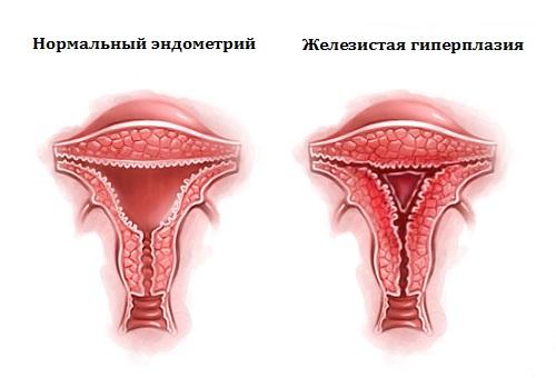 Атипичная гиперплазия эндометрия — это рак или нет?