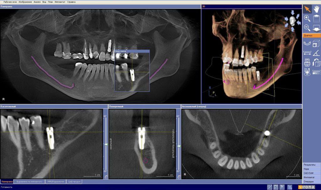 Рак челюсти: как распознать рак верхней и нижней челюсти?