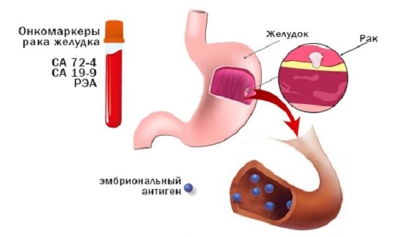 Перстневидноклеточный рак желудка: симптомы и лечение, прогноз