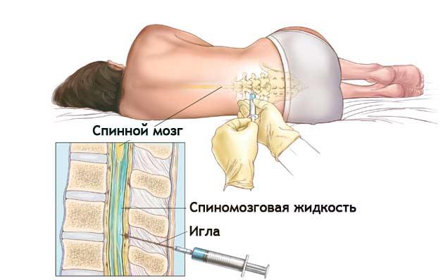 Рак спинного мозга: симптомы, течение болезни и лечение
